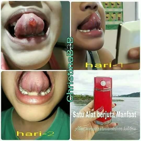 Nano benjolan di lidah