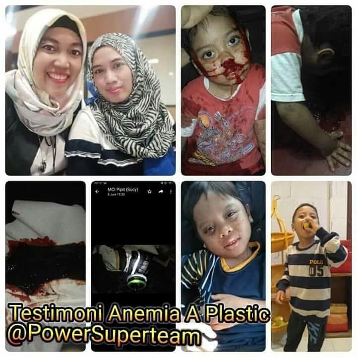 Anemia a Plastic, bioglass, testimoni, kesehatan, kekentalan darah