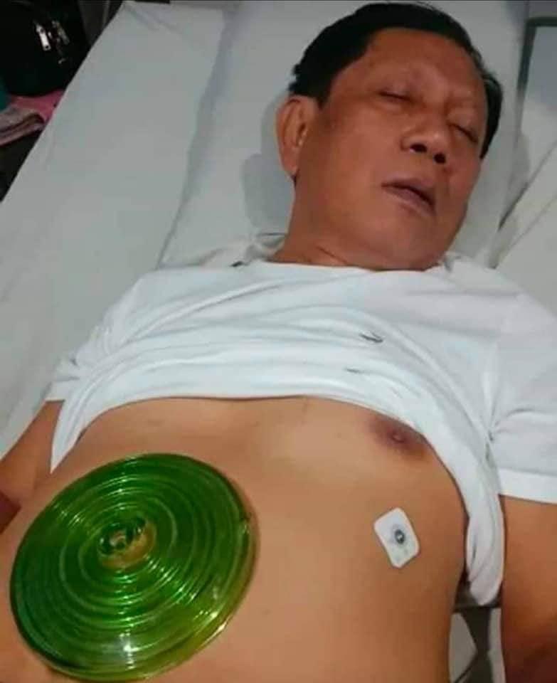 Batal Operasi Jantung berkat Ikhtiar BIOVORTEX MCI